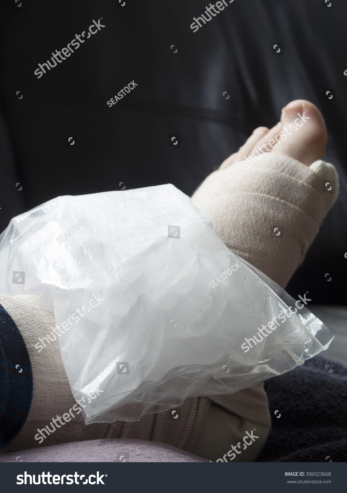 Bag Ice On Broken Fractured Sprained Stock Photo (Edit Now ...