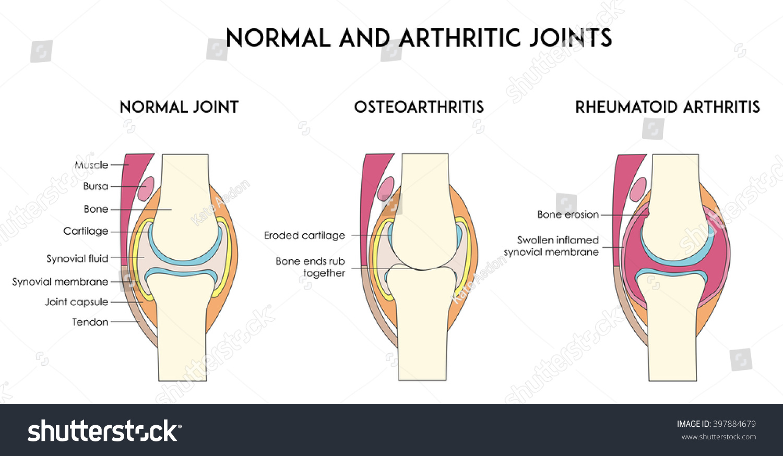 Normal Arthritic Human Joints Types Arthritis Stock Vector Royalty