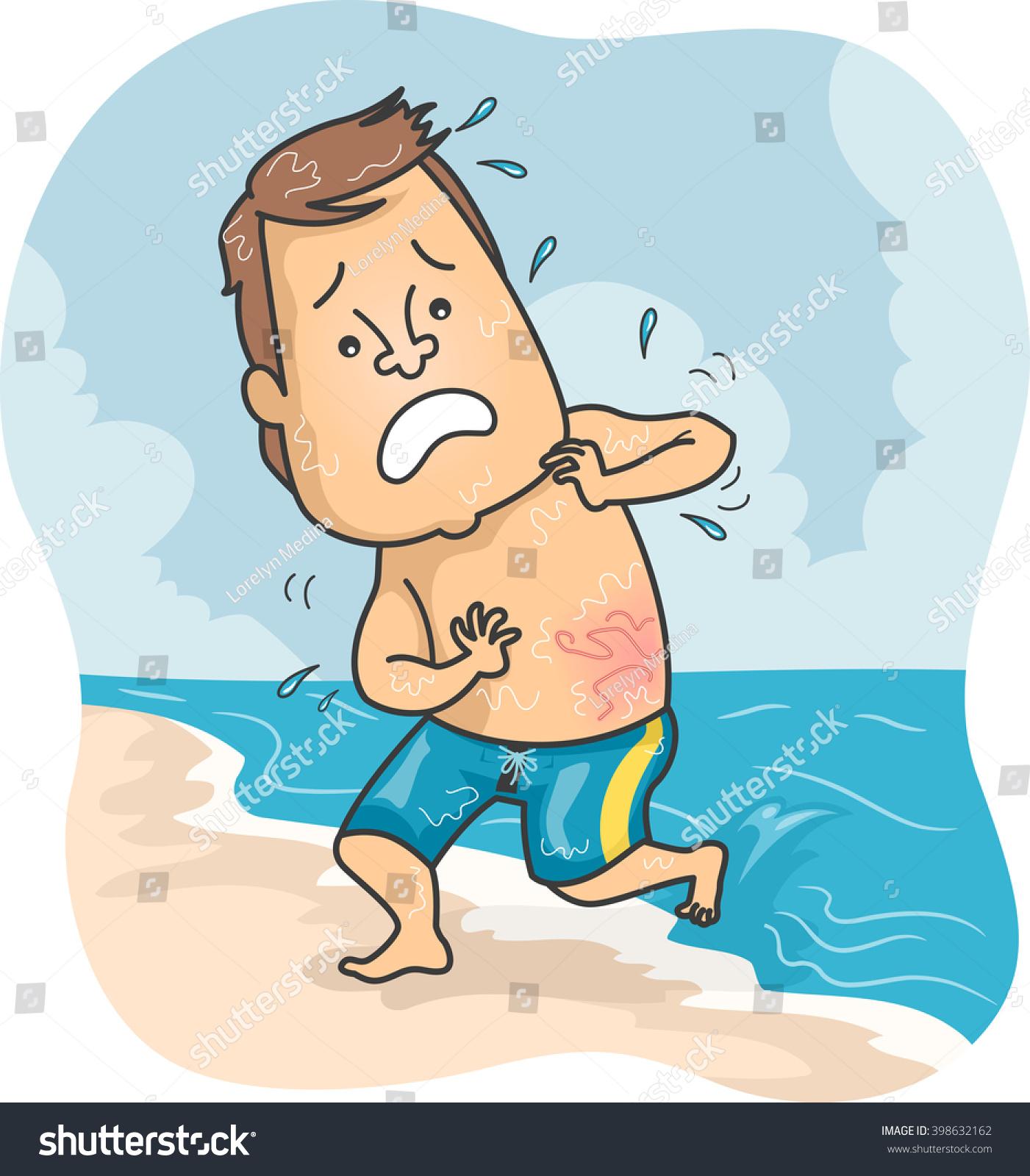 illustration man beach stung by jellyfish stock vector 398632162