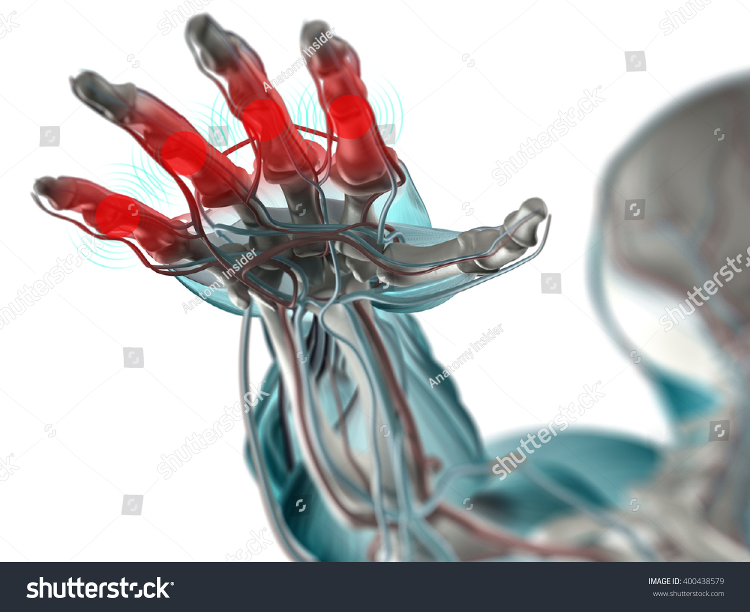 Arthritis Fingers Hand Anatomy 3 D Illustration Stock Illustration ...