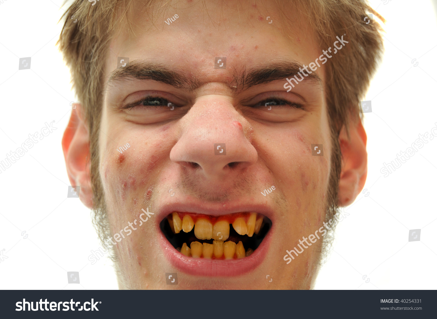 Dating a man with bad teeth