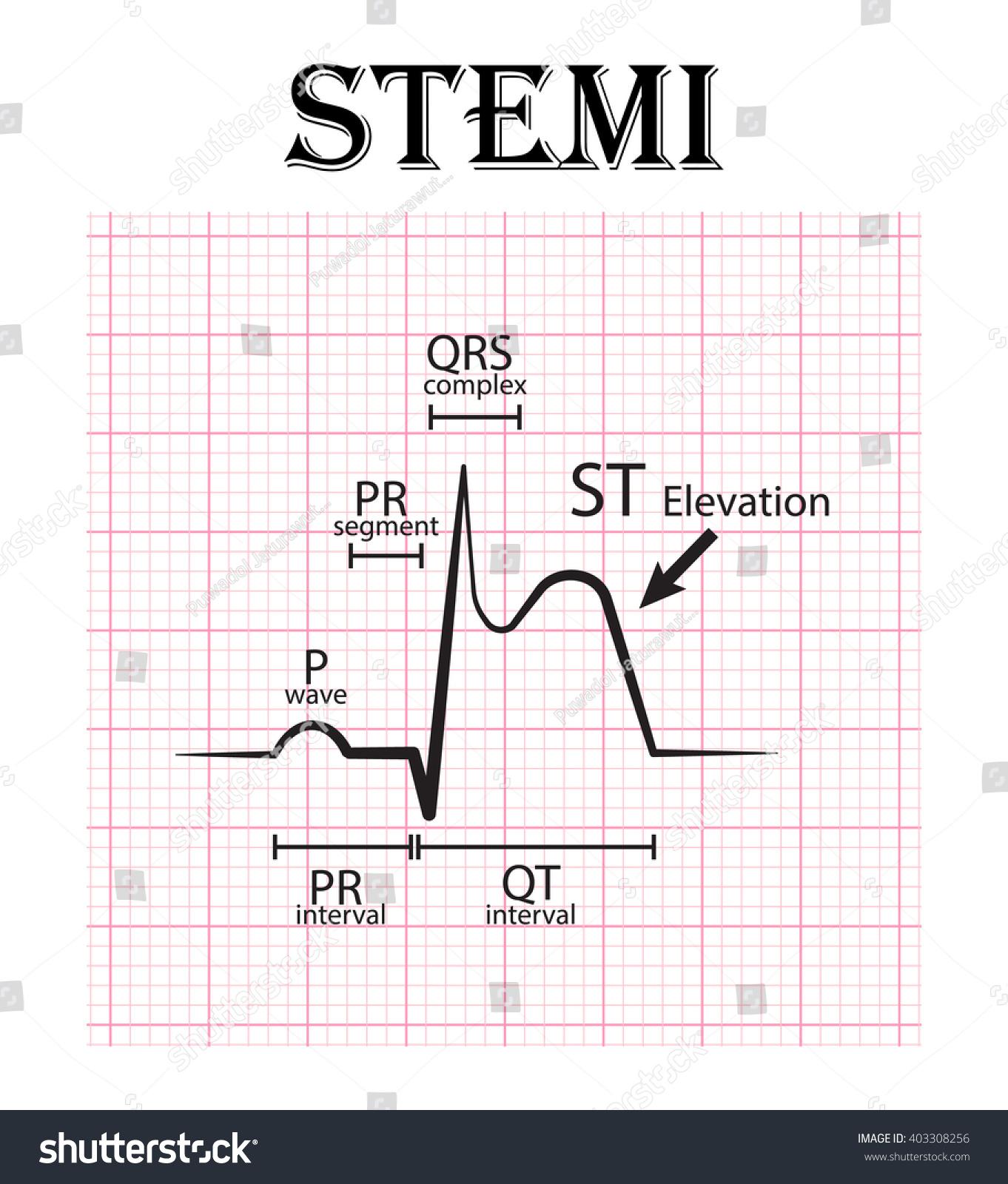 ecg st elevation myocardial infarction stemi stock vector ekg vector circle ekg vector art