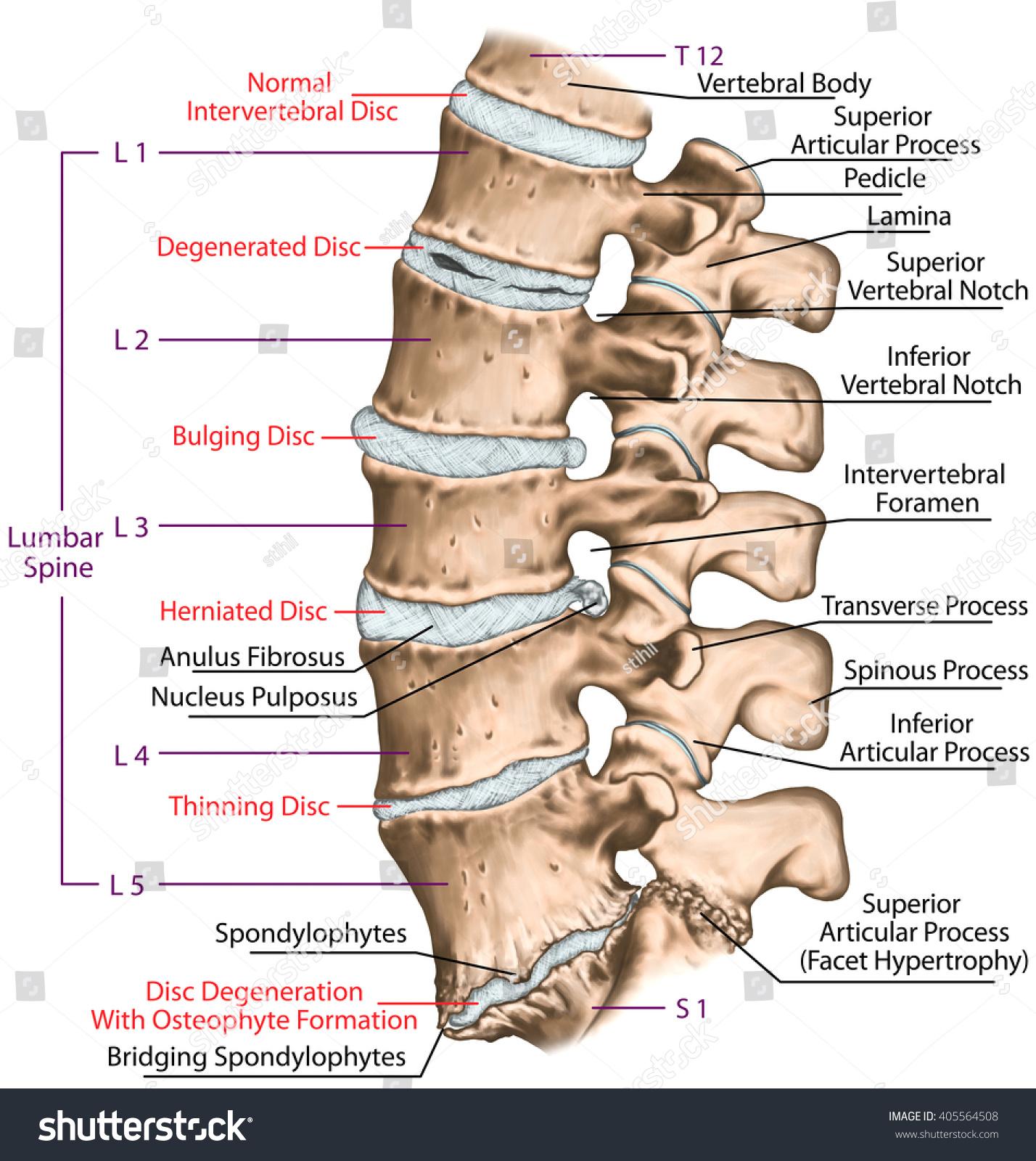 Spine Disc Problems Degenerative Lumbar Disc Stock Illustration
