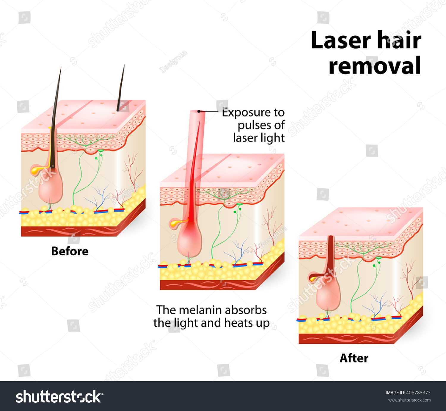 Laser hair removal stock vector 406788373 shutterstock laser hair removal pooptronica Choice Image