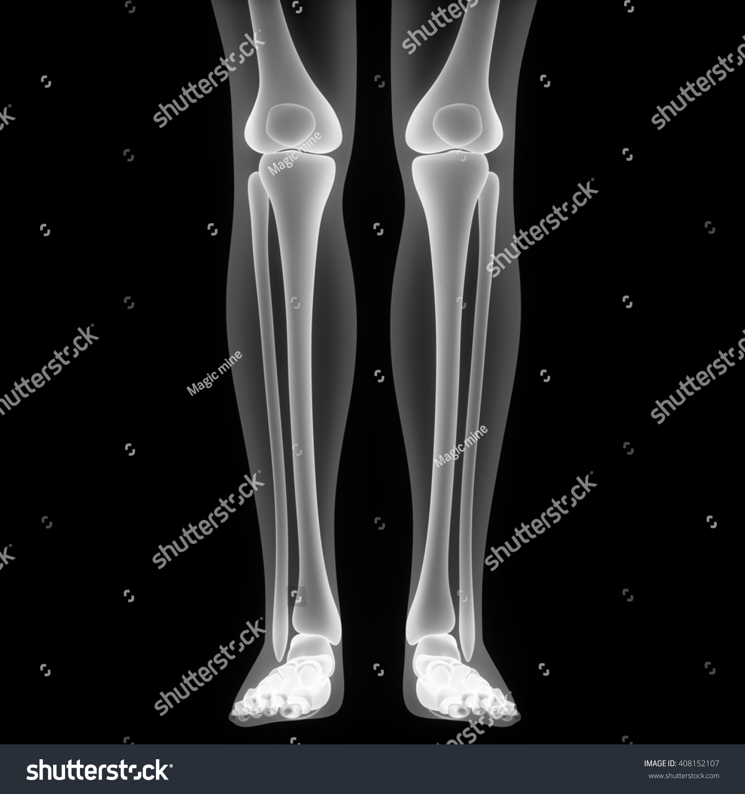 3d Illustration Of Human Body Leg Bones Ez Canvas