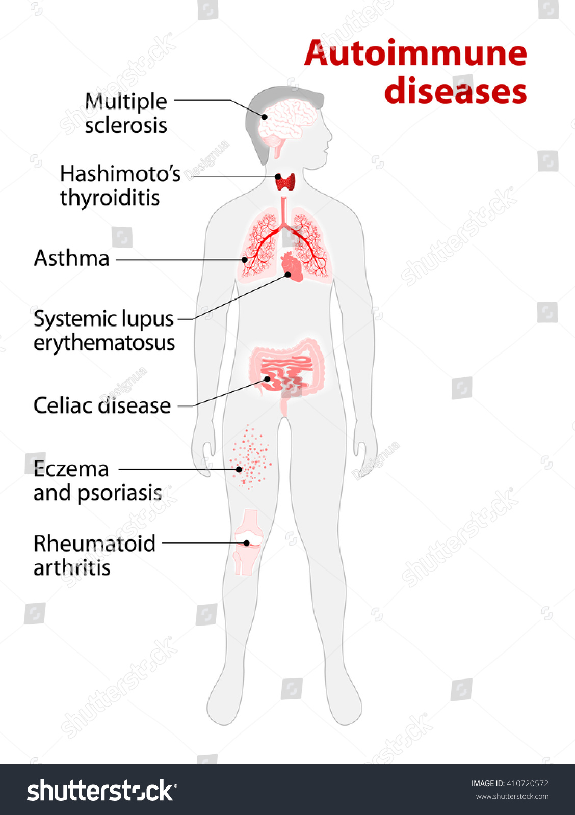Tissues Human Body Affected By Autoimmune Stock Vector 410720572 ...