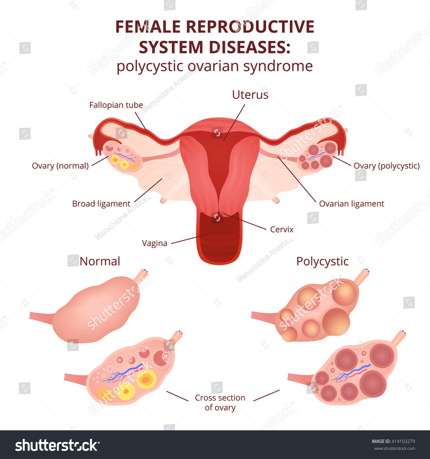 Female Reproductive System Uterus Ovaries Scheme Stock