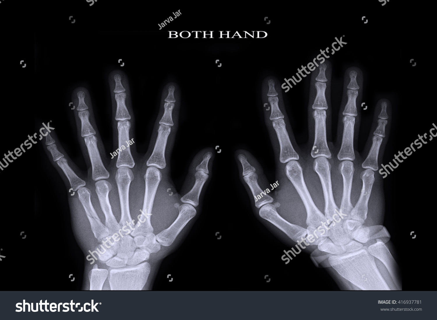 Why the little finger of the left hand goes numb What to do if the hand goes numb 9