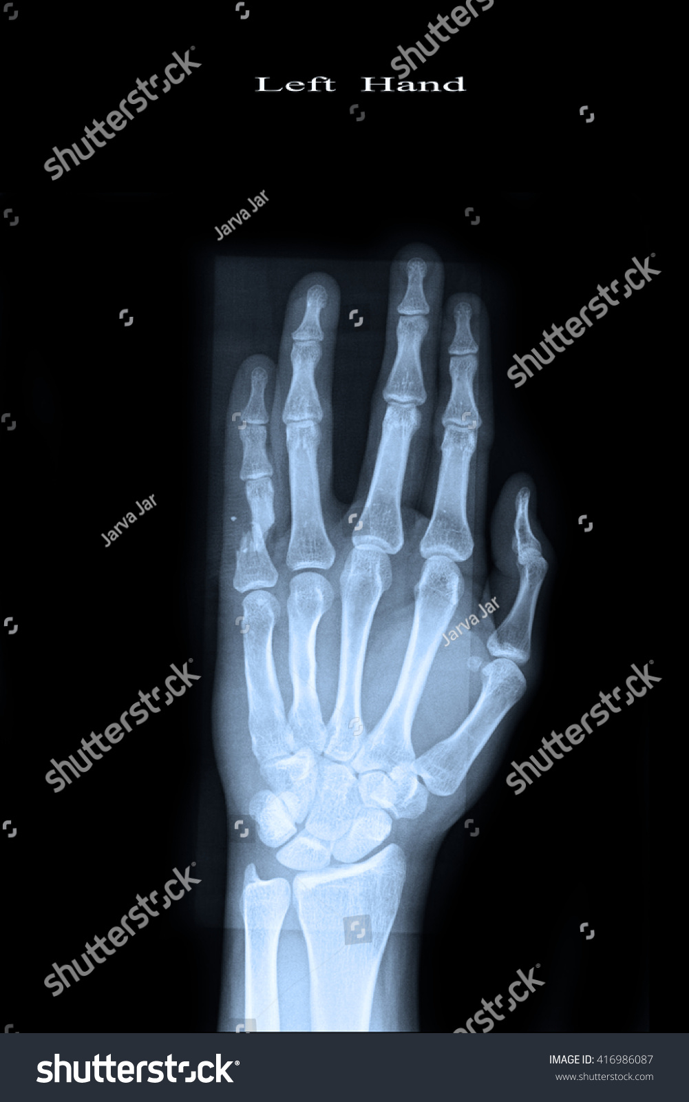 X-ray show closed fracture finger thumb left hand | EZ Canvas