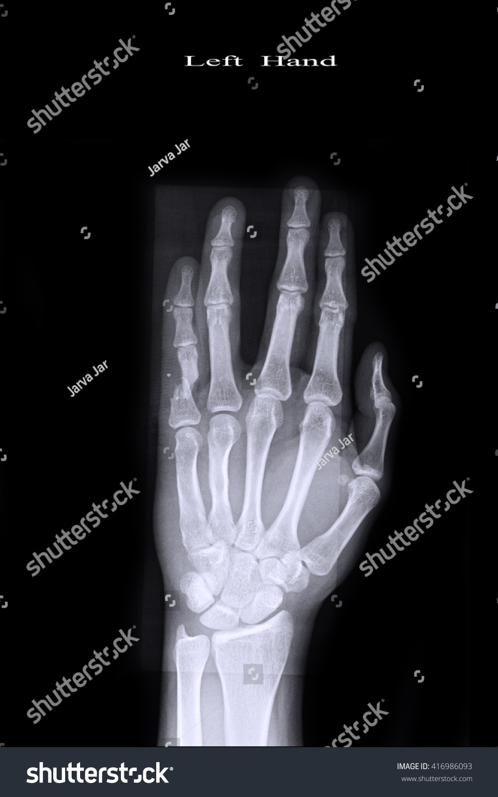 Why the little finger of the left hand goes numb What to do if the hand goes numb 24