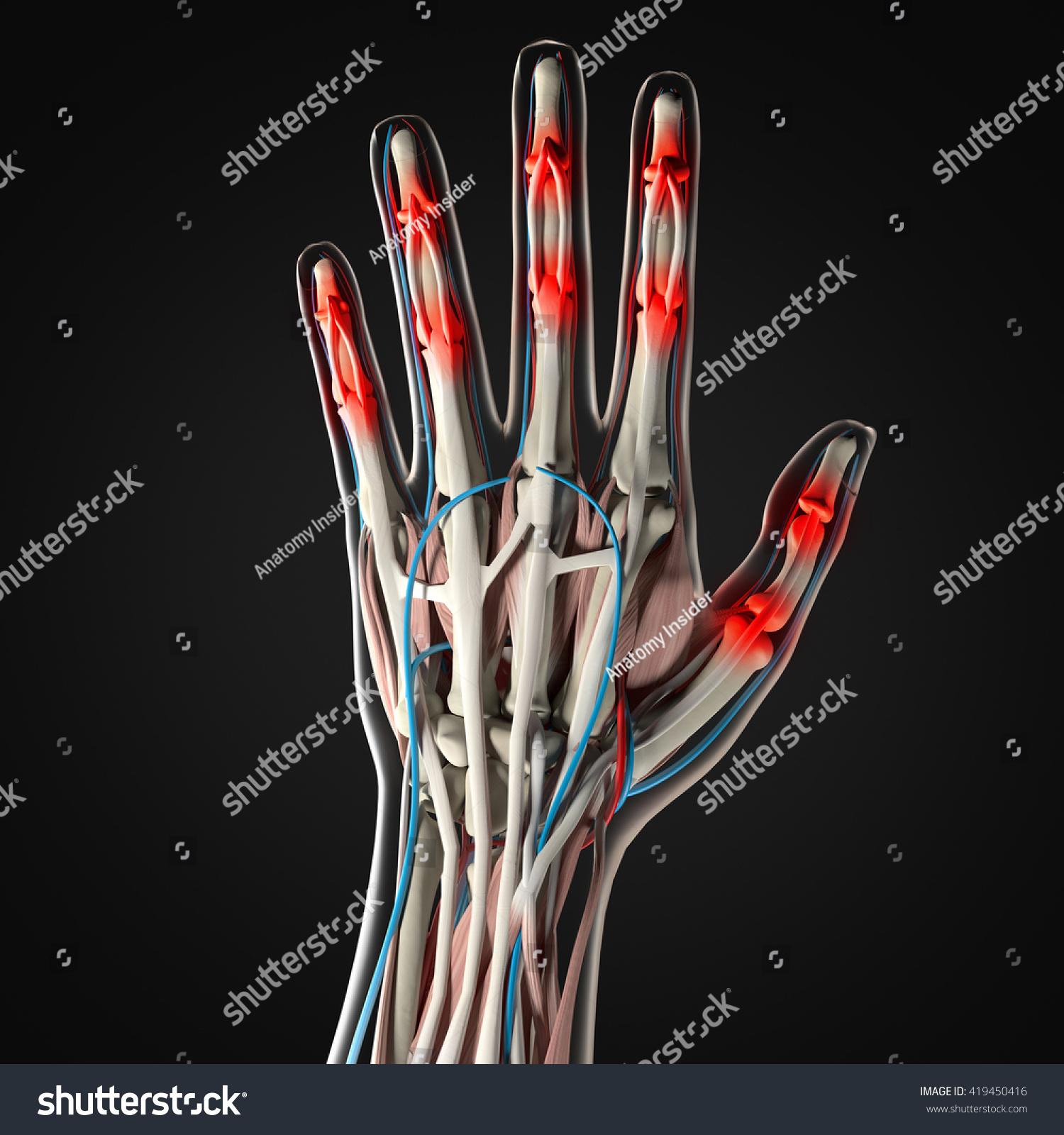 Human Anatomy Hand Arthritis Joint Pain Stock Illustration 419450416 ...