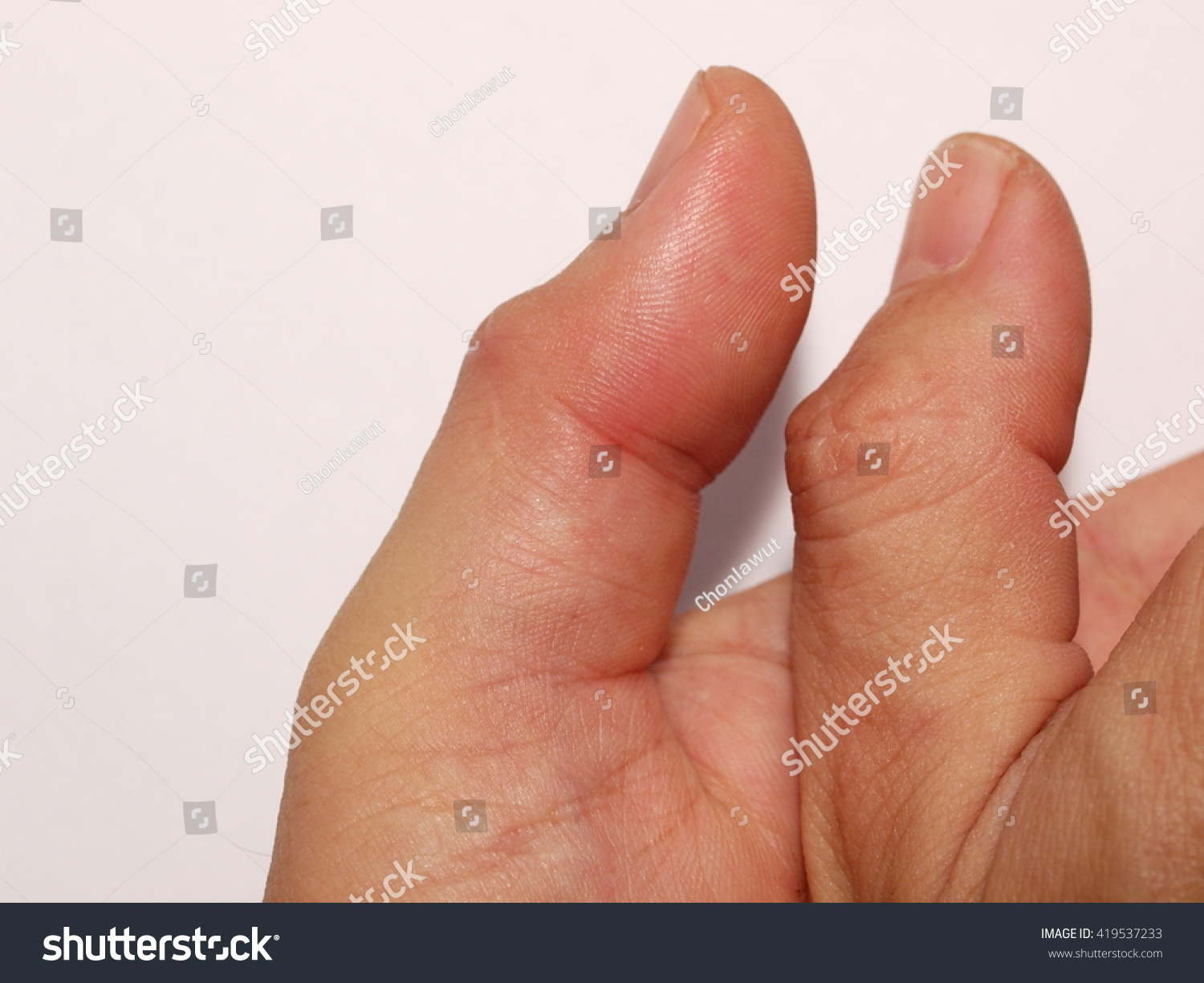gout treatment when taking warfarin gout normal uric acid levels can you get gout in both big toes