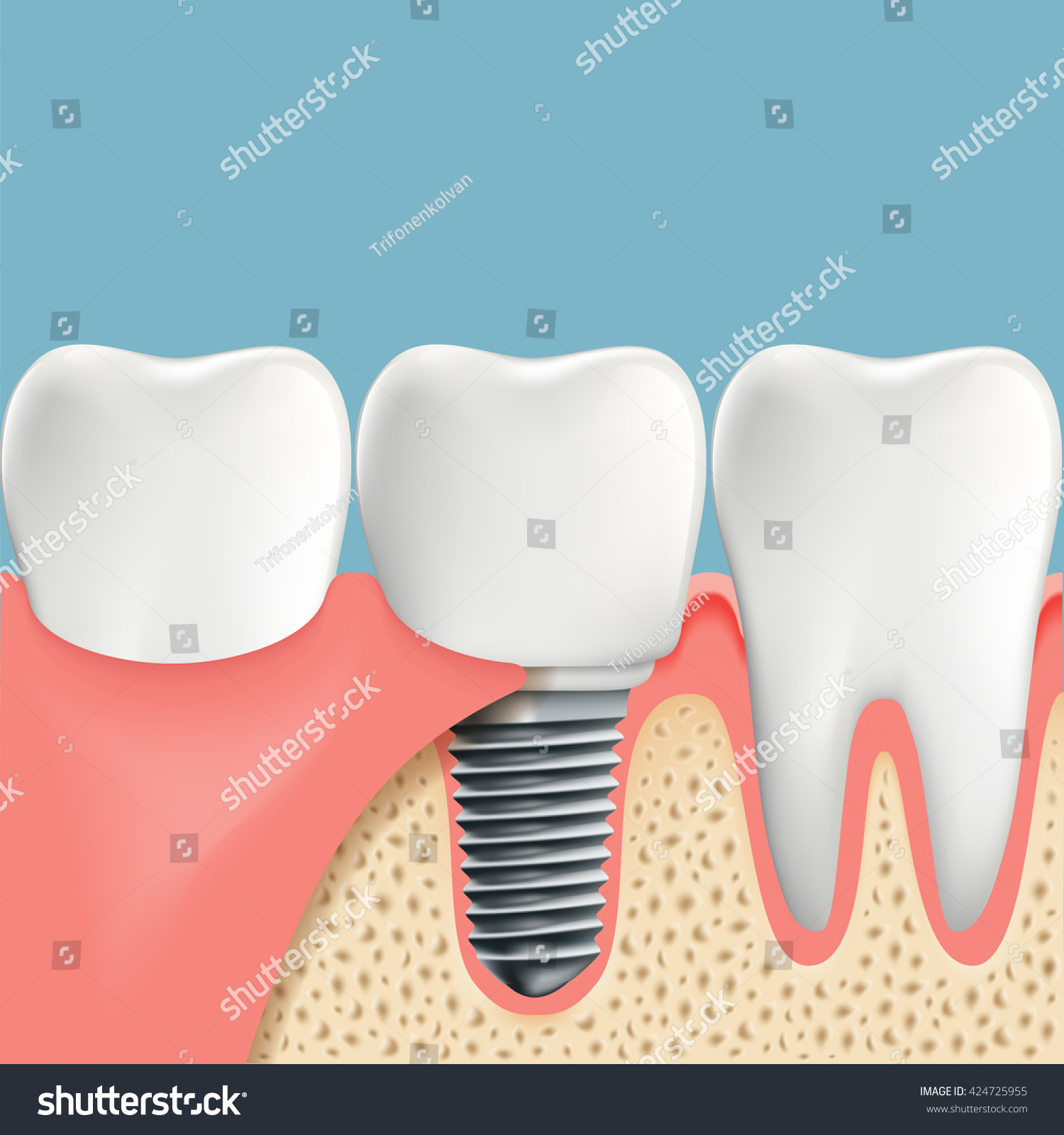 Human Teeth Dental Implant Anatomy Oral Stock Vector Royalty Free