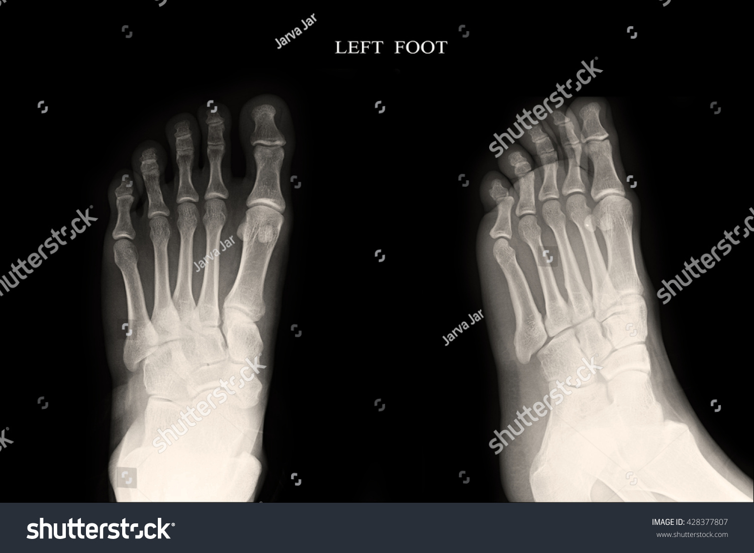 Xray Left Foot AP Lateral Stock Photo (Royalty Free) 428377807 ...