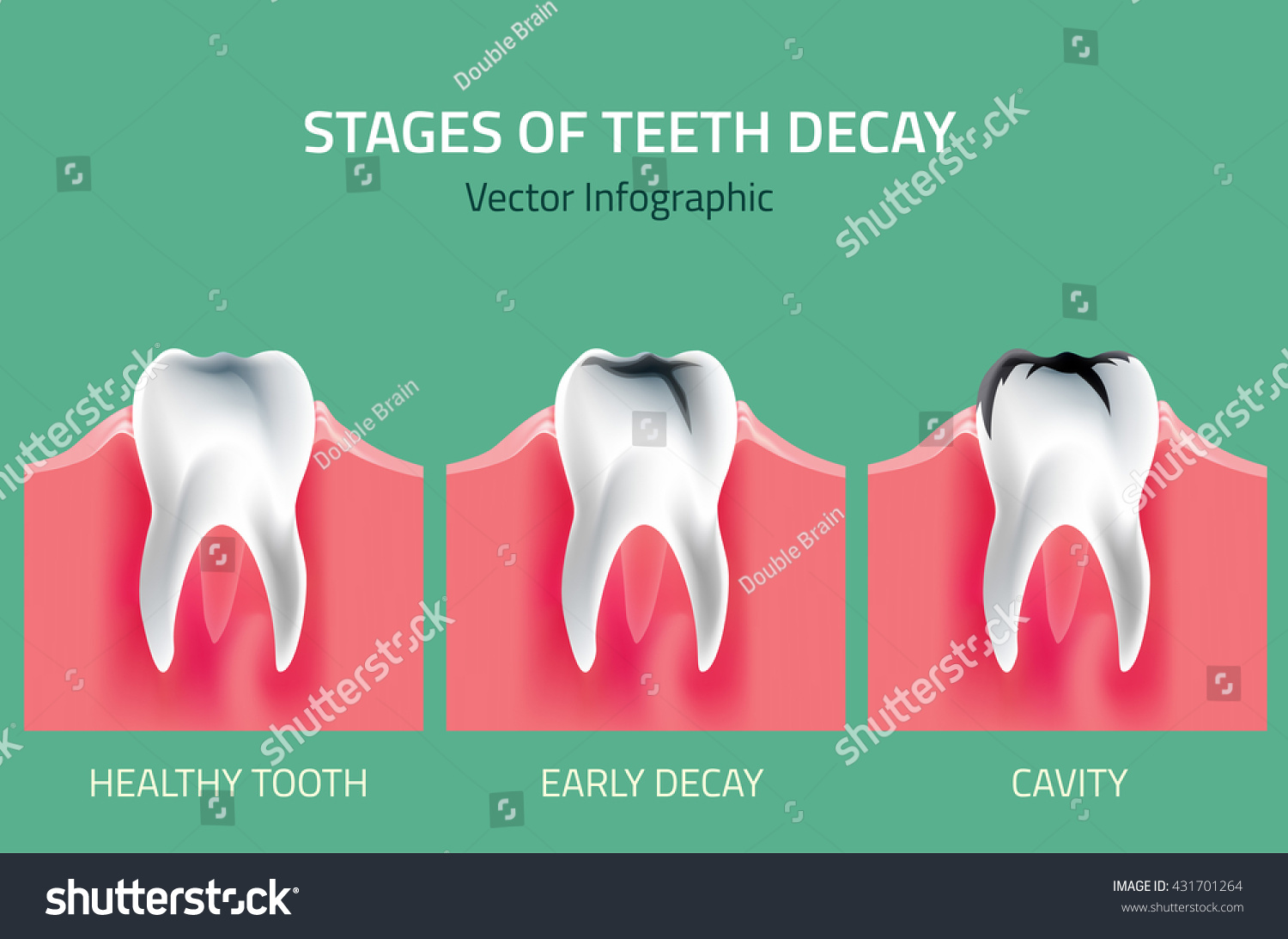 Teeth Disease Infographic Gum Disease Stages Stock Vector 431701264