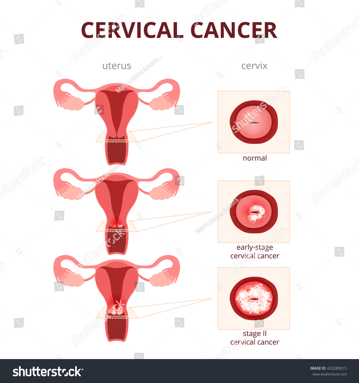 Cervical Cancer Schematic Illustration Uterus Cervix Stock