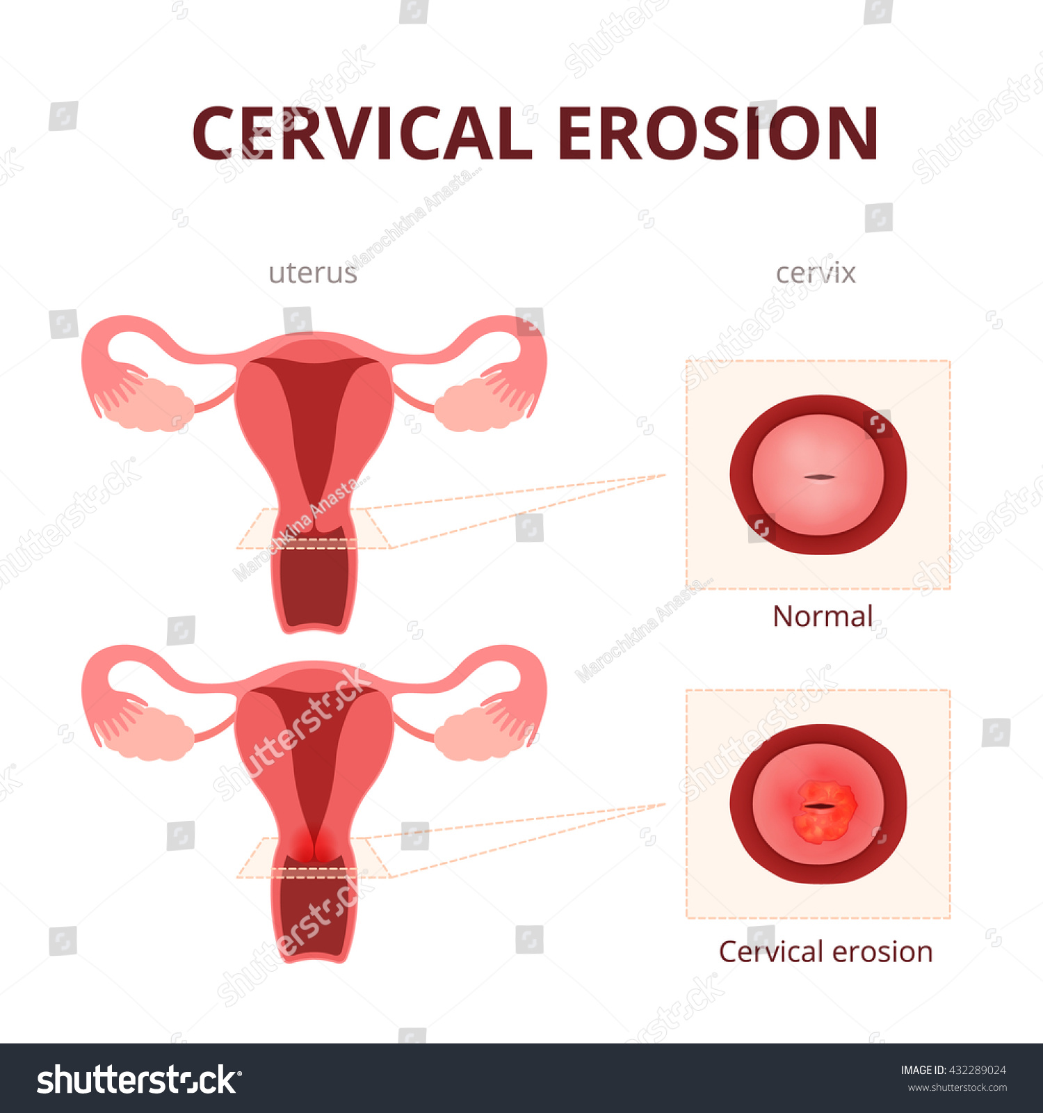 Stock Vector Cervical Erosion Schematic Illustration Of The Uterus And The Cervix Female Reproductive System Diseaseson Female Reproductive System Cervix