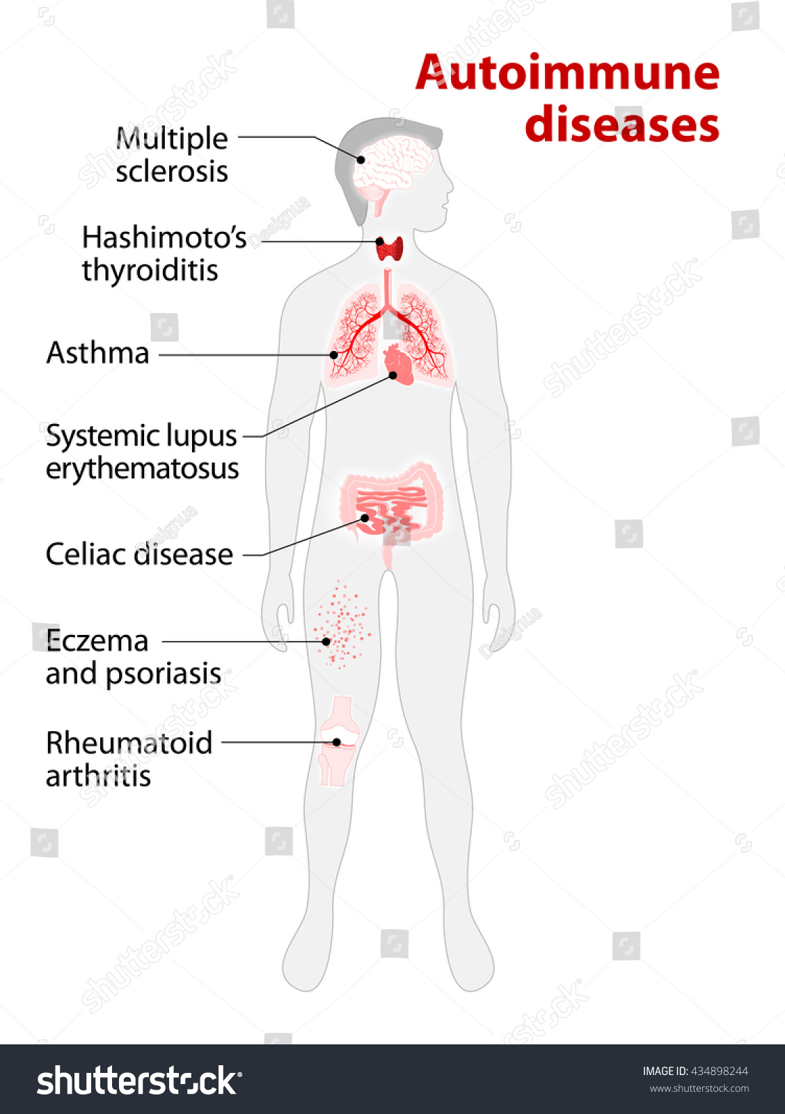 Tissues Human Body Affected By Autoimmune Stock Illustration ...