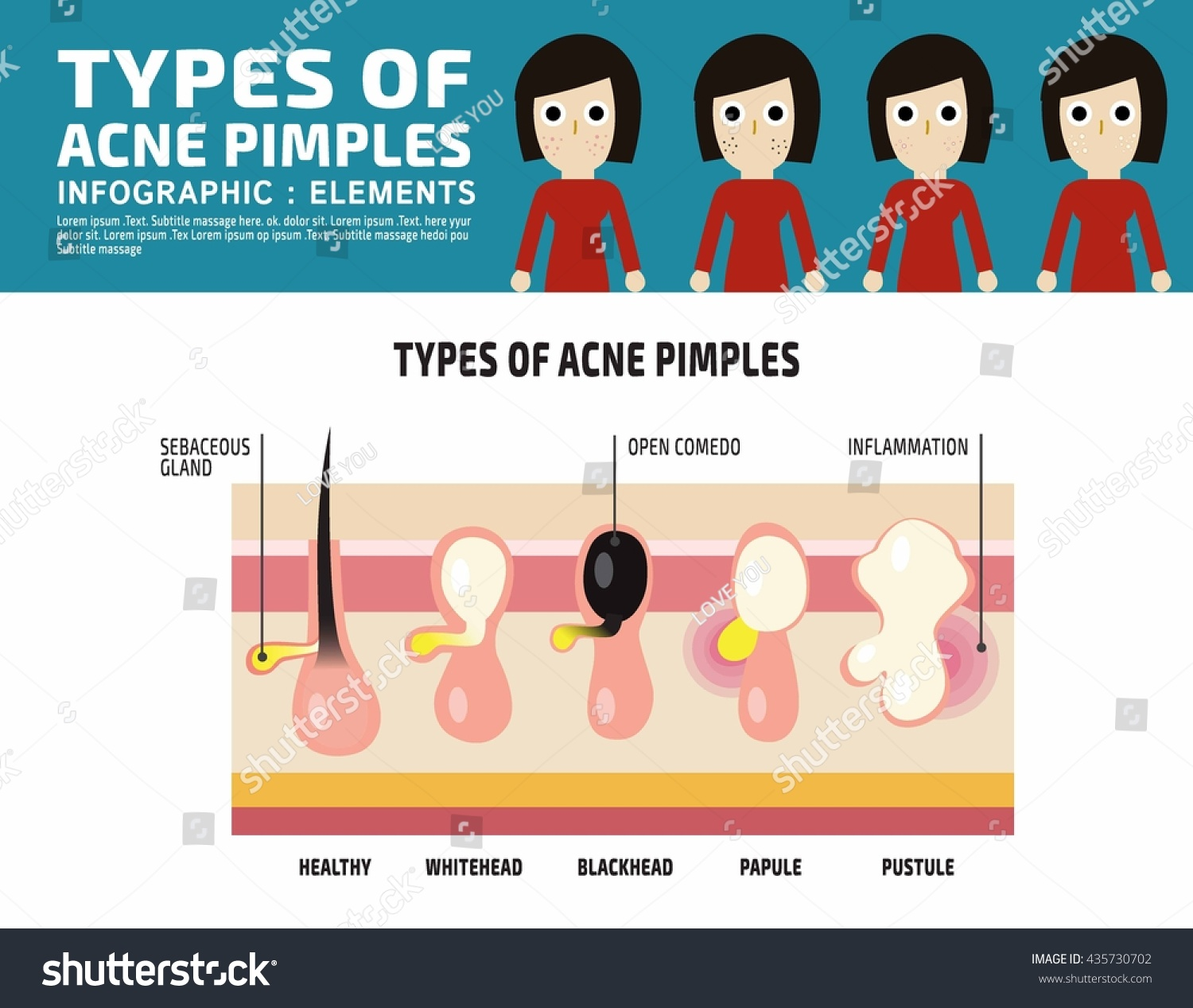 Types Anatomy Acne Pimples Infographic Elements Stock Vector ...