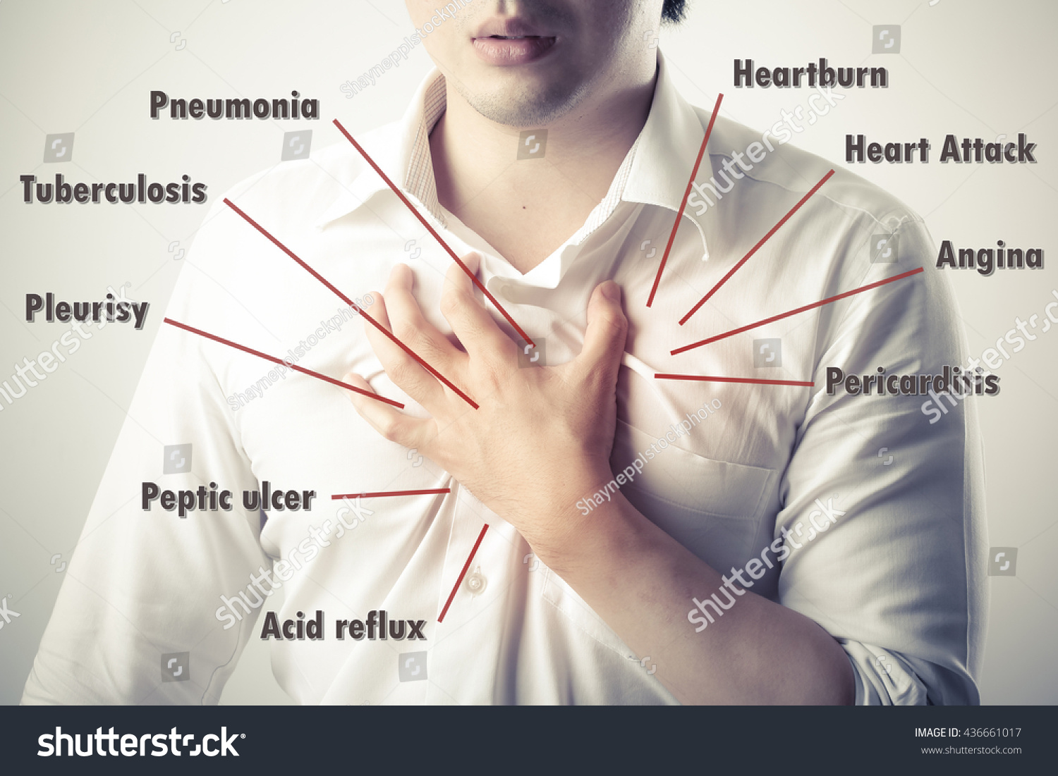 Heart diagram pain electrical work wiring diagram chest pain causes disease diagram stock photo edit now shutterstock rh shutterstock com heart attack chest pain diagram heart attack pain diagram ccuart Image collections