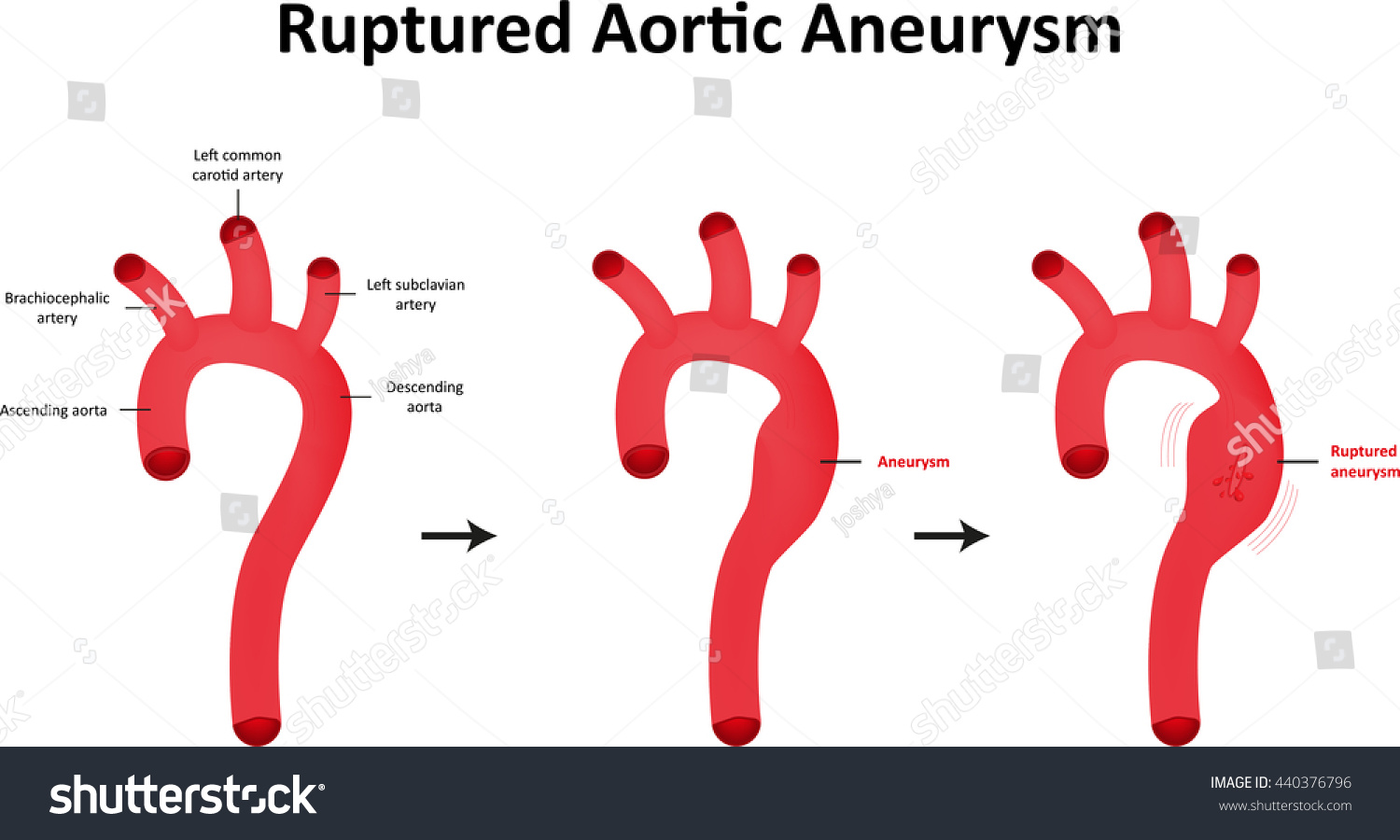 stock vector ruptured aortic aneurysm labeled diagram 440376796 ruptured aortic aneurysm labeled diagram stock vector (royalty free