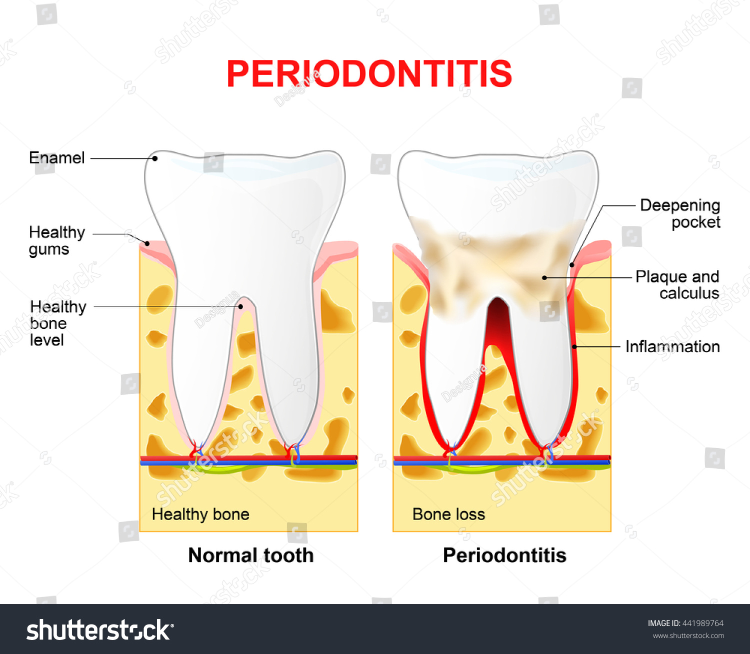 Periodontitis Is A Inflammatory Diseases Affecting The Periodontium