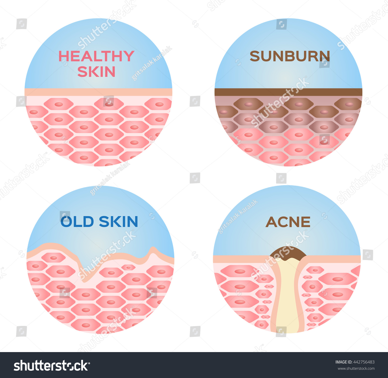 Healthy Sunburn Old Skin Acne 4 Stock Vector Royalty Free