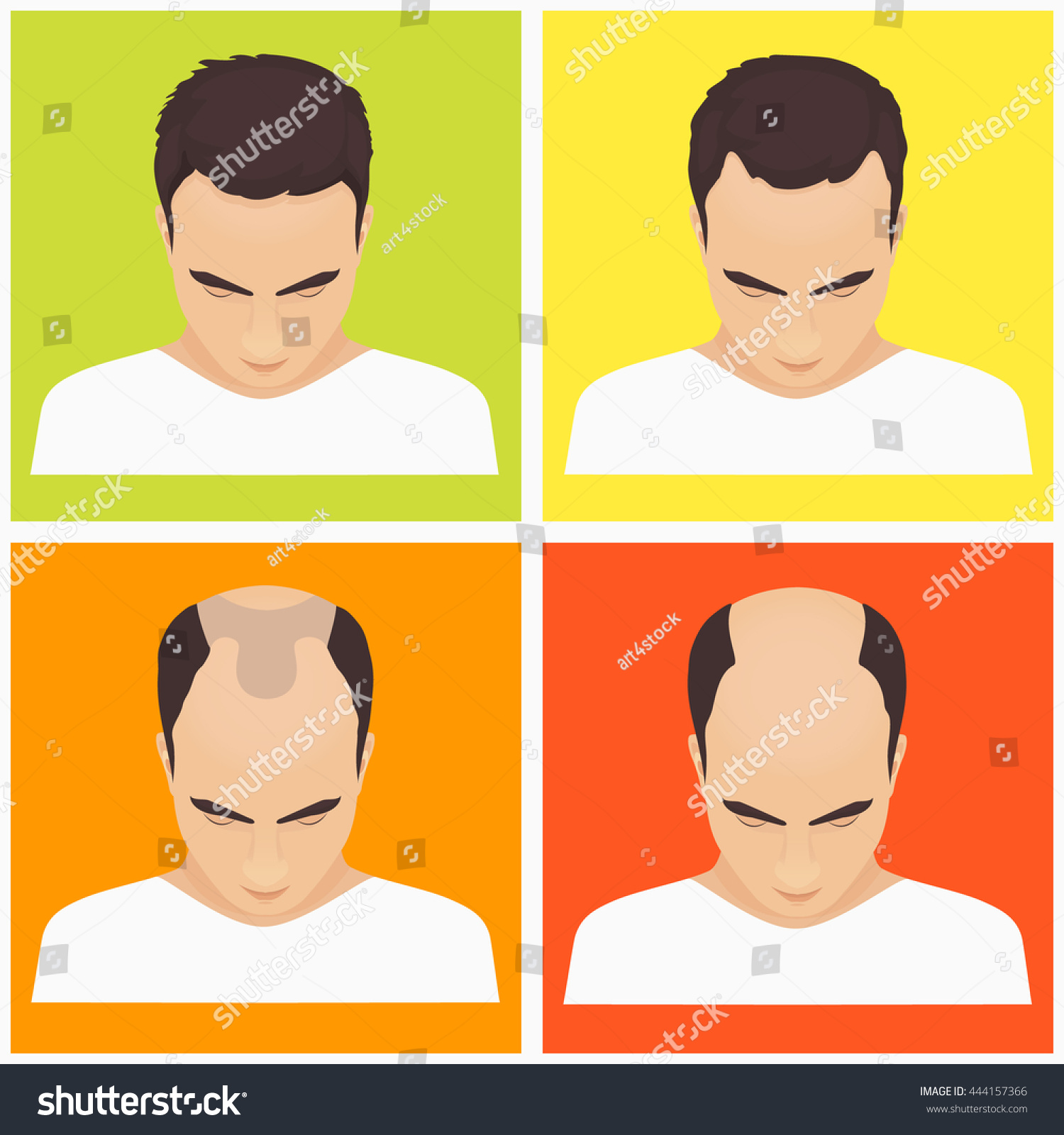 Male Pattern Baldness Stages New Design Ideas