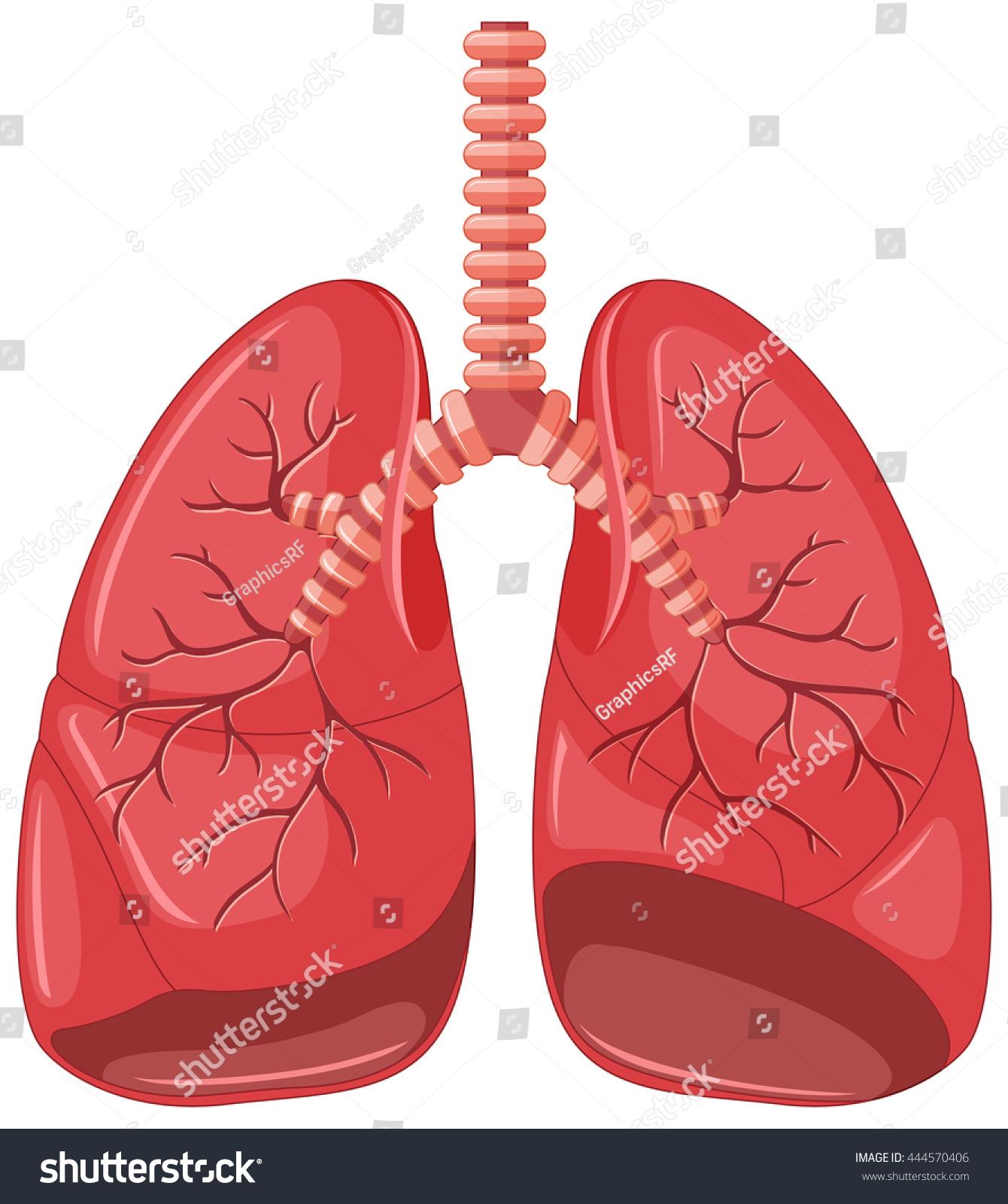 Lung Diagram Pneumonia Illustration Stock Vector Royalty Free