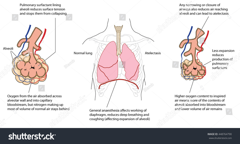Atelectasis Collapsed Lung Detail Alveoli Normal Stock Vektorgrafik
