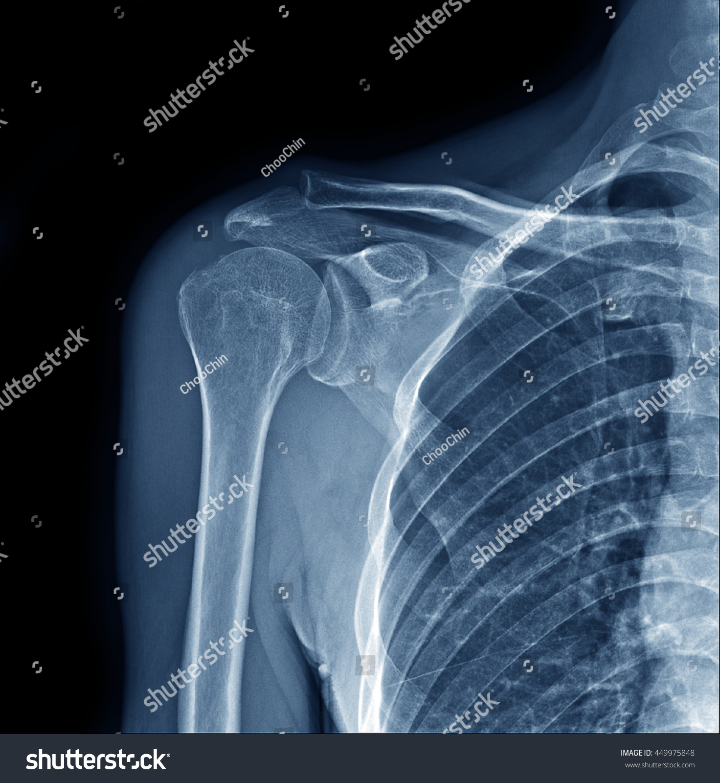 Xray Right Human Shoulder Joint Show Stock Photo (Edit Now ...