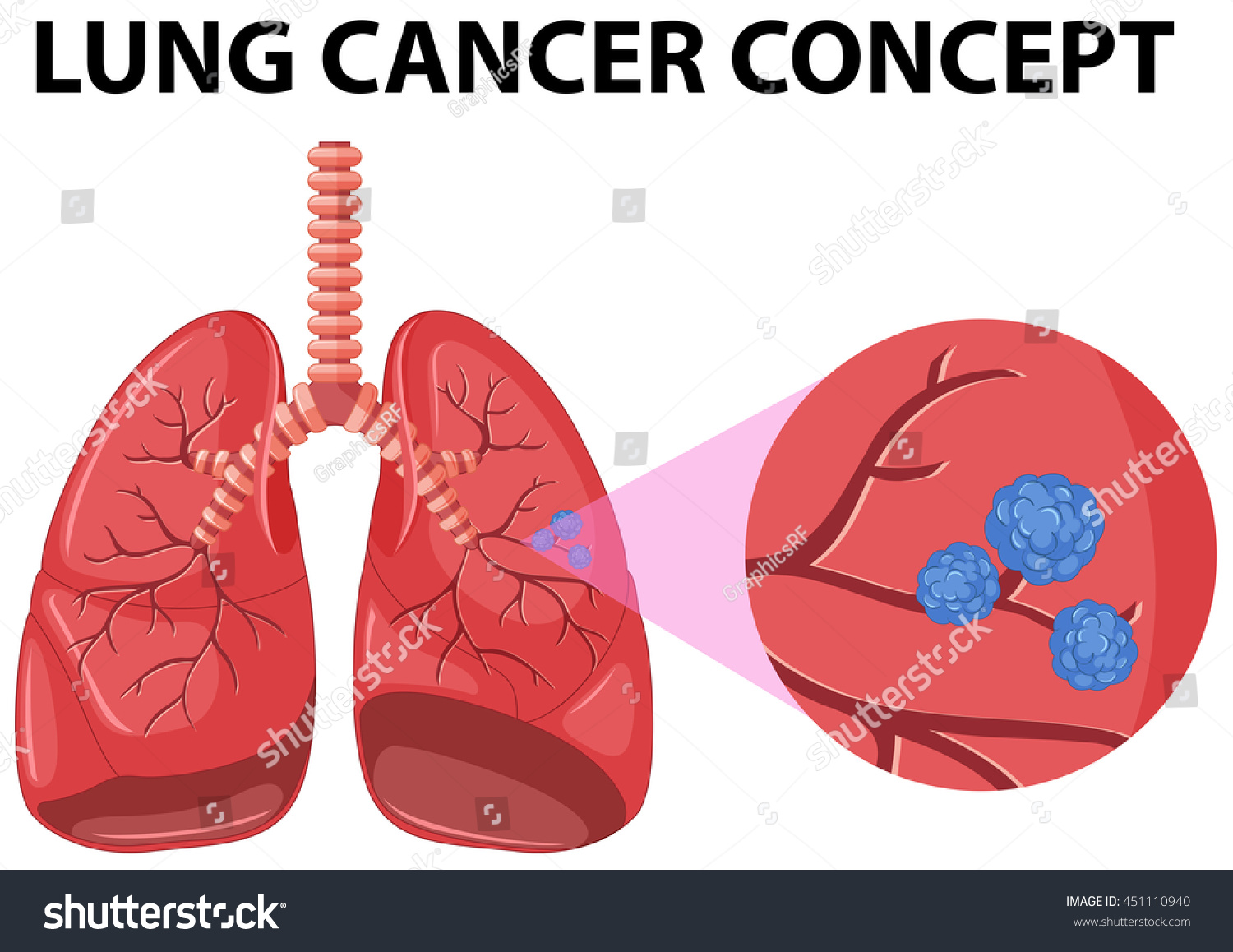 Diagram lung cancer concept illustration stock vector 451110940 diagram of lung cancer concept illustration pooptronica Image collections