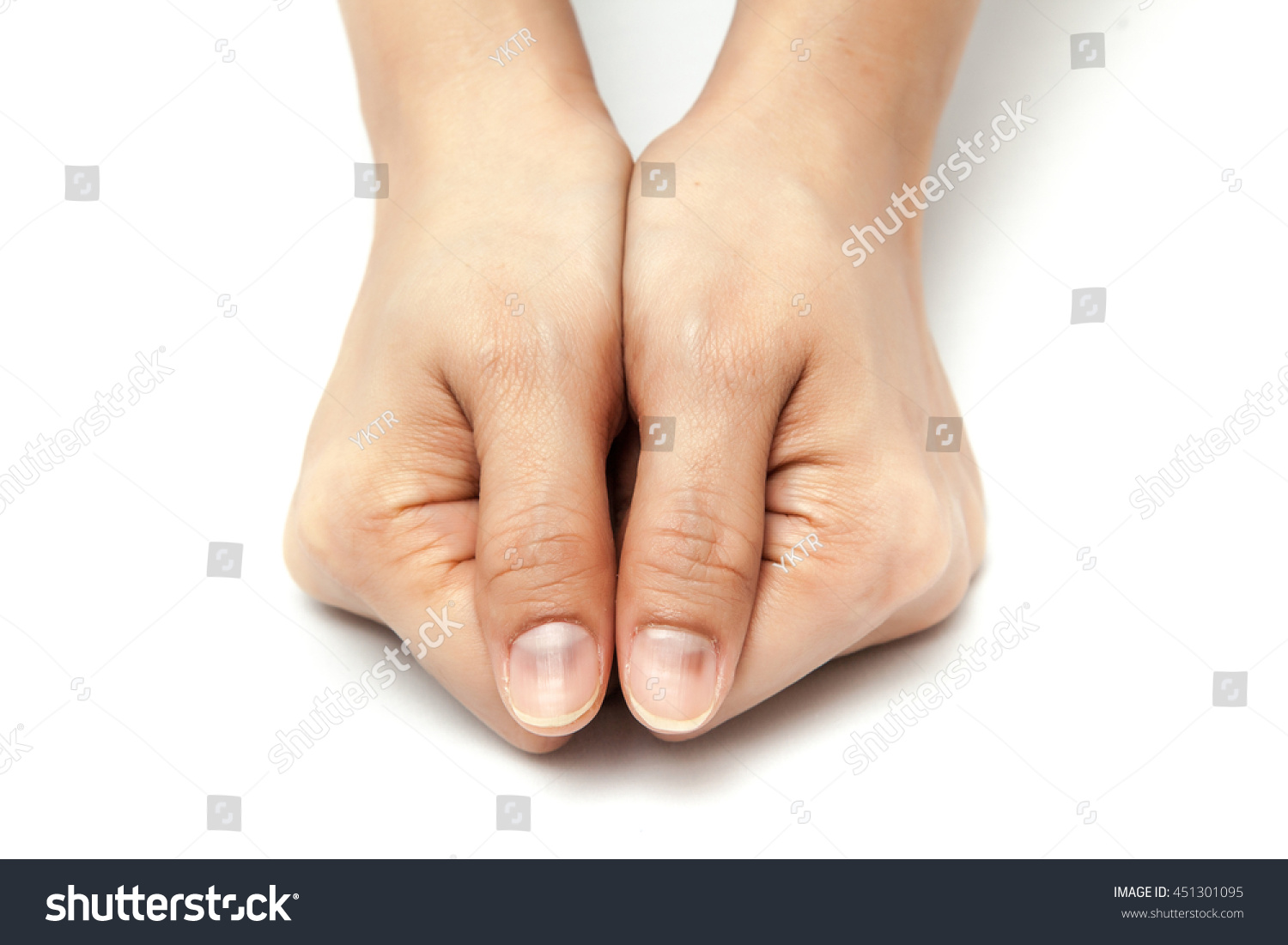 Dark Fingernails Patient After Take Chemotherapy Stock Photo ...