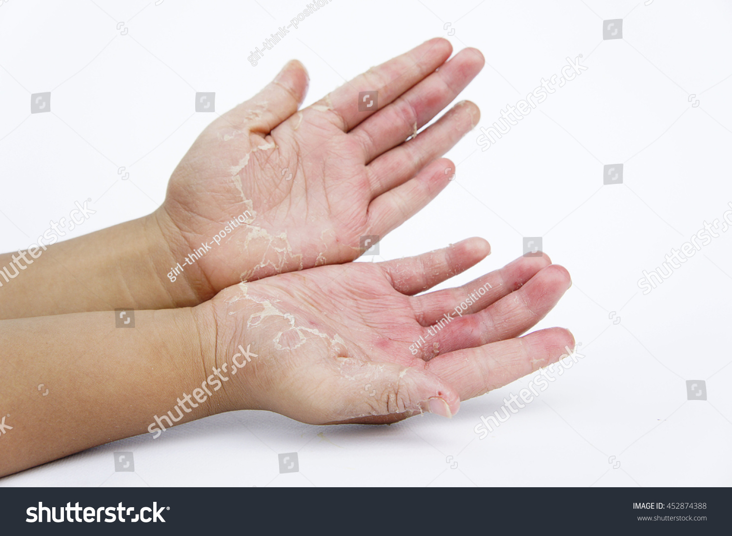 Dry Hands Peel Infectious Inflammatory Skin Stock Photo (Download ...