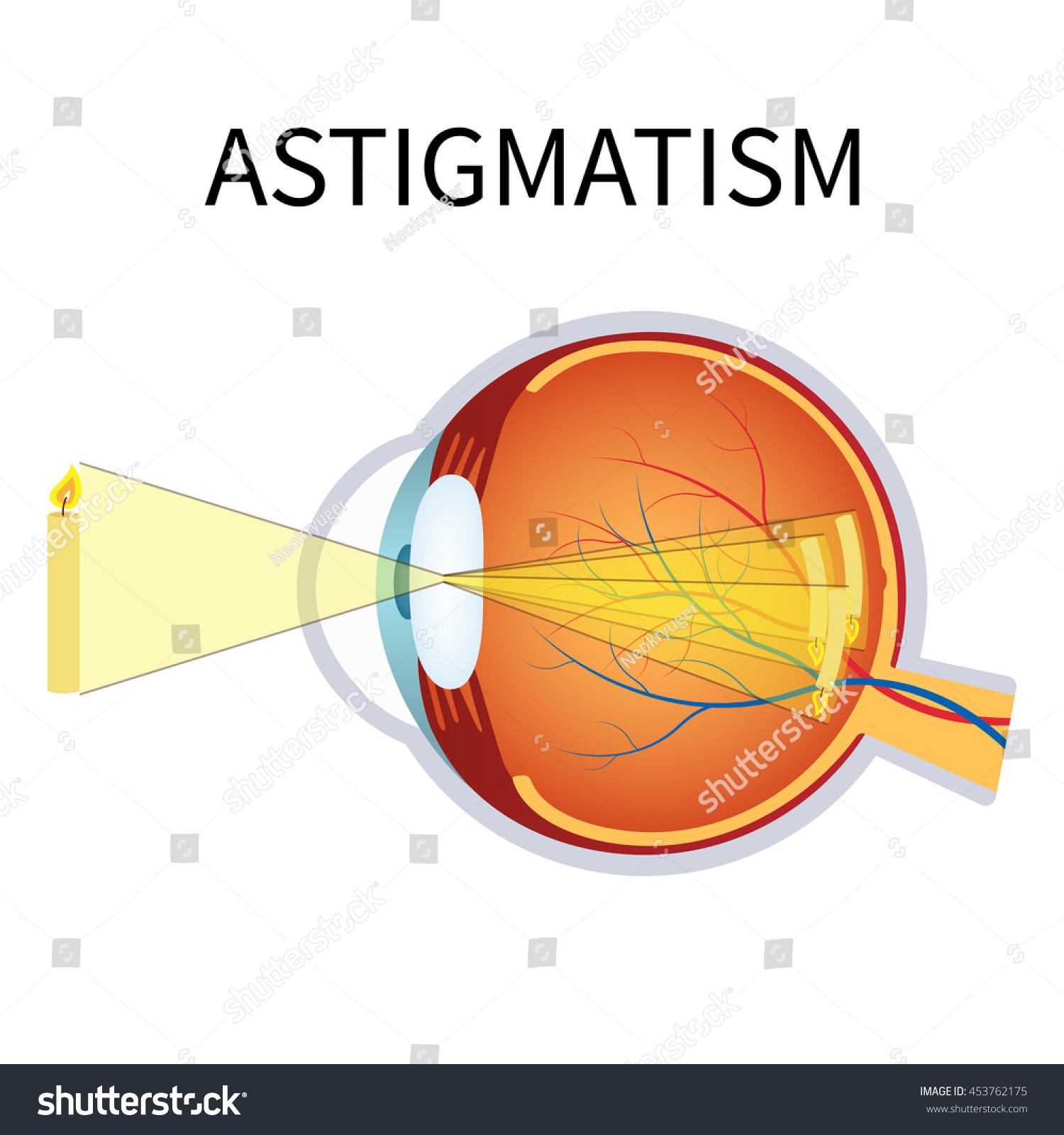 Illustration Astigmatism Astigmatism Blurred Vision Anatomy Stock