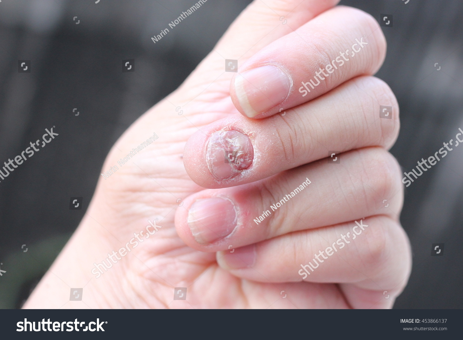Finger Onychomycosis Soft Focus Stock Photo (Royalty Free) 453866137 ...