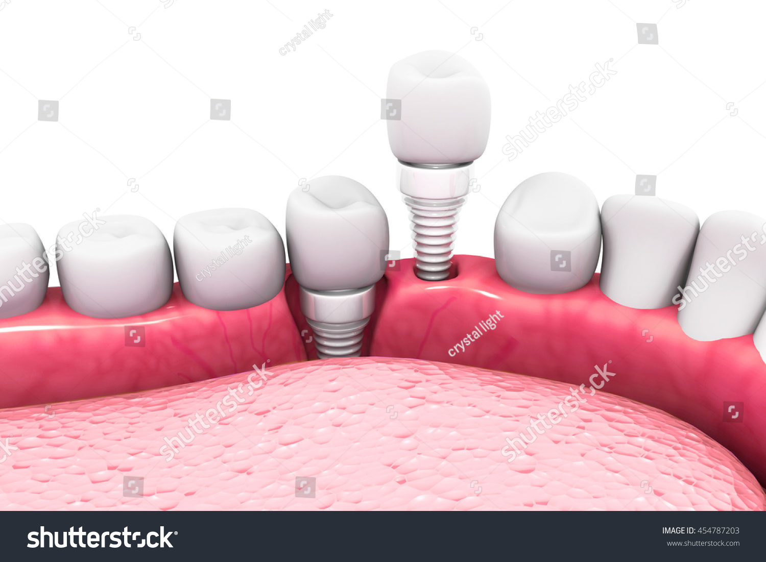 Dental implant structure.3D render