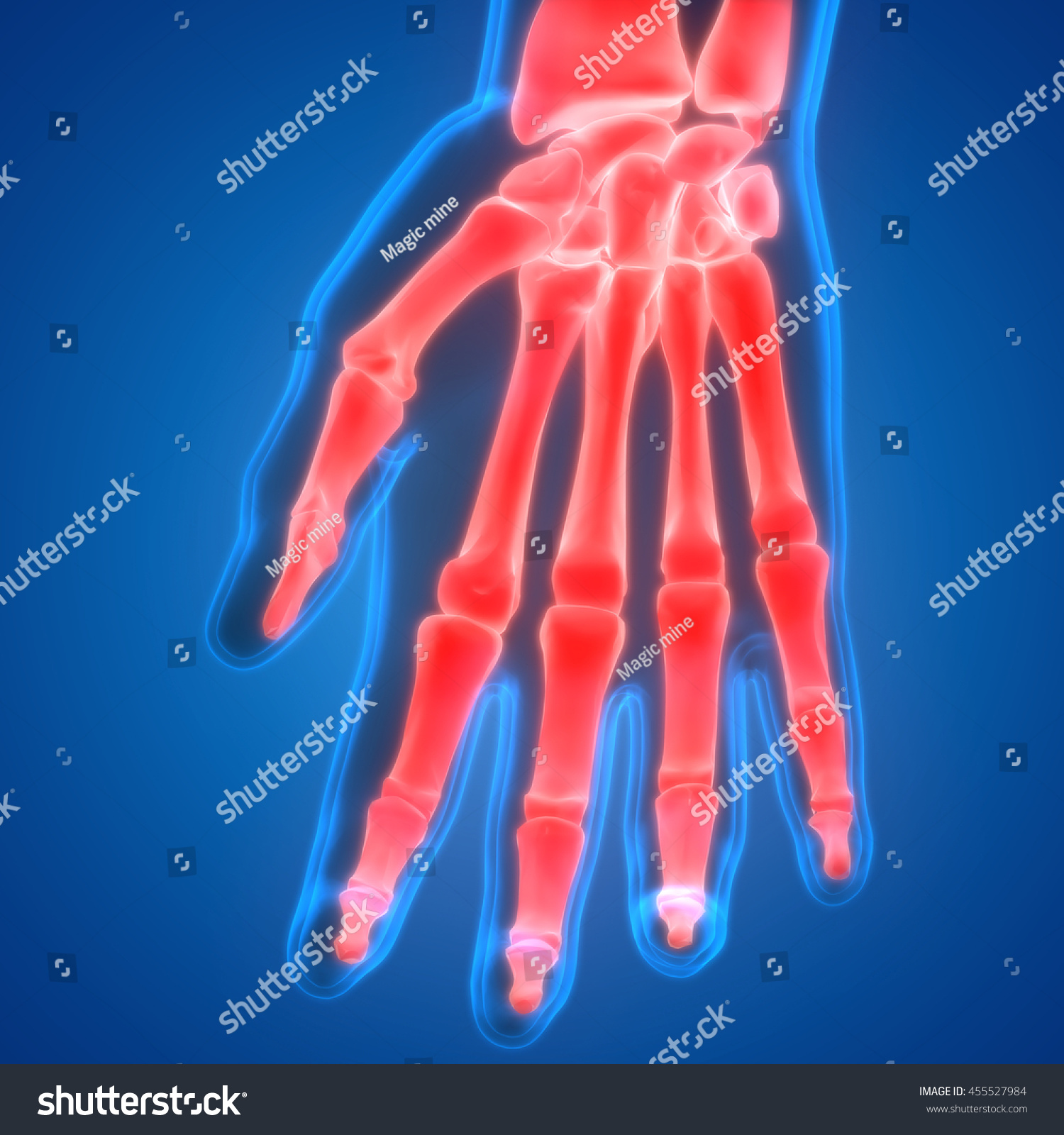 Human Body Bone Joint Pains Hand Stock Illustration 455527984 ...