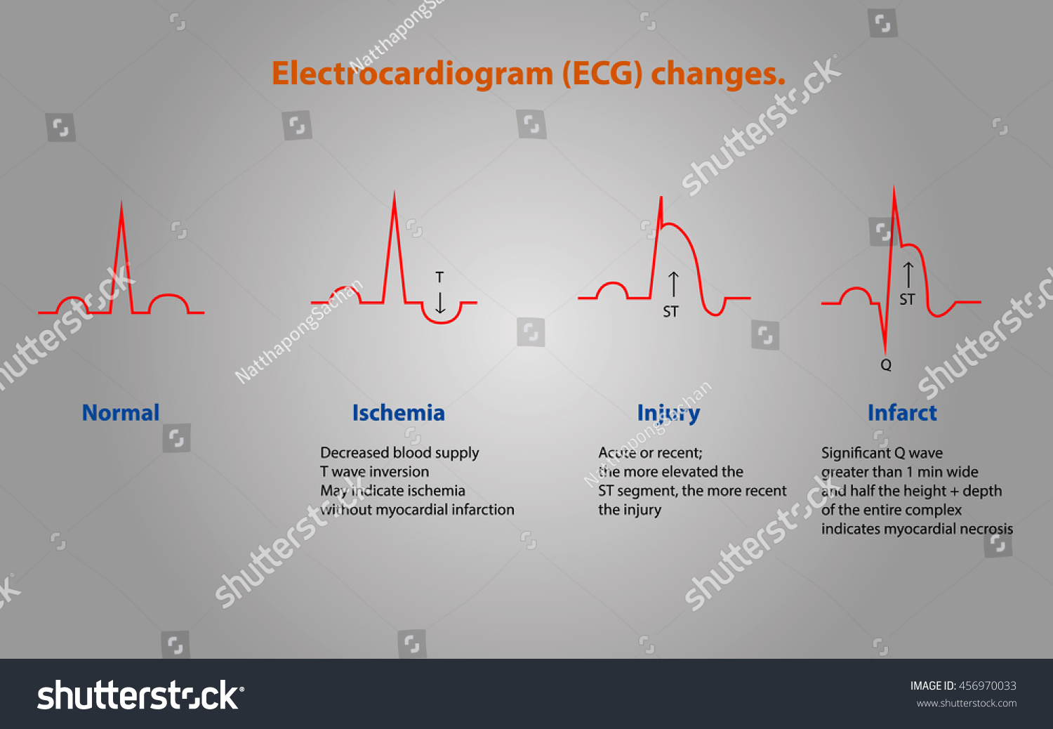 Electrocardiogram Diagram Electrocar Diogram Picture Show Ecg Changes Stock Vector Royalty The Normal And Abnormal