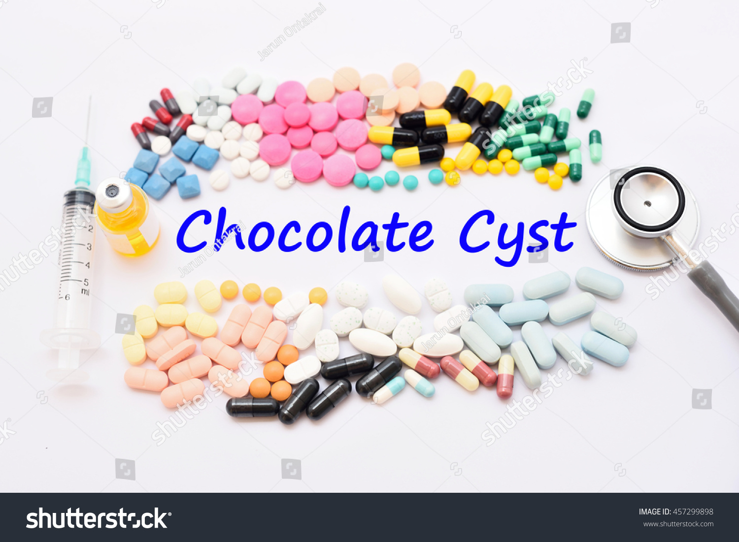Drugs For Chocolate Cyst Treatment, Medical Concept Stock Photo ...