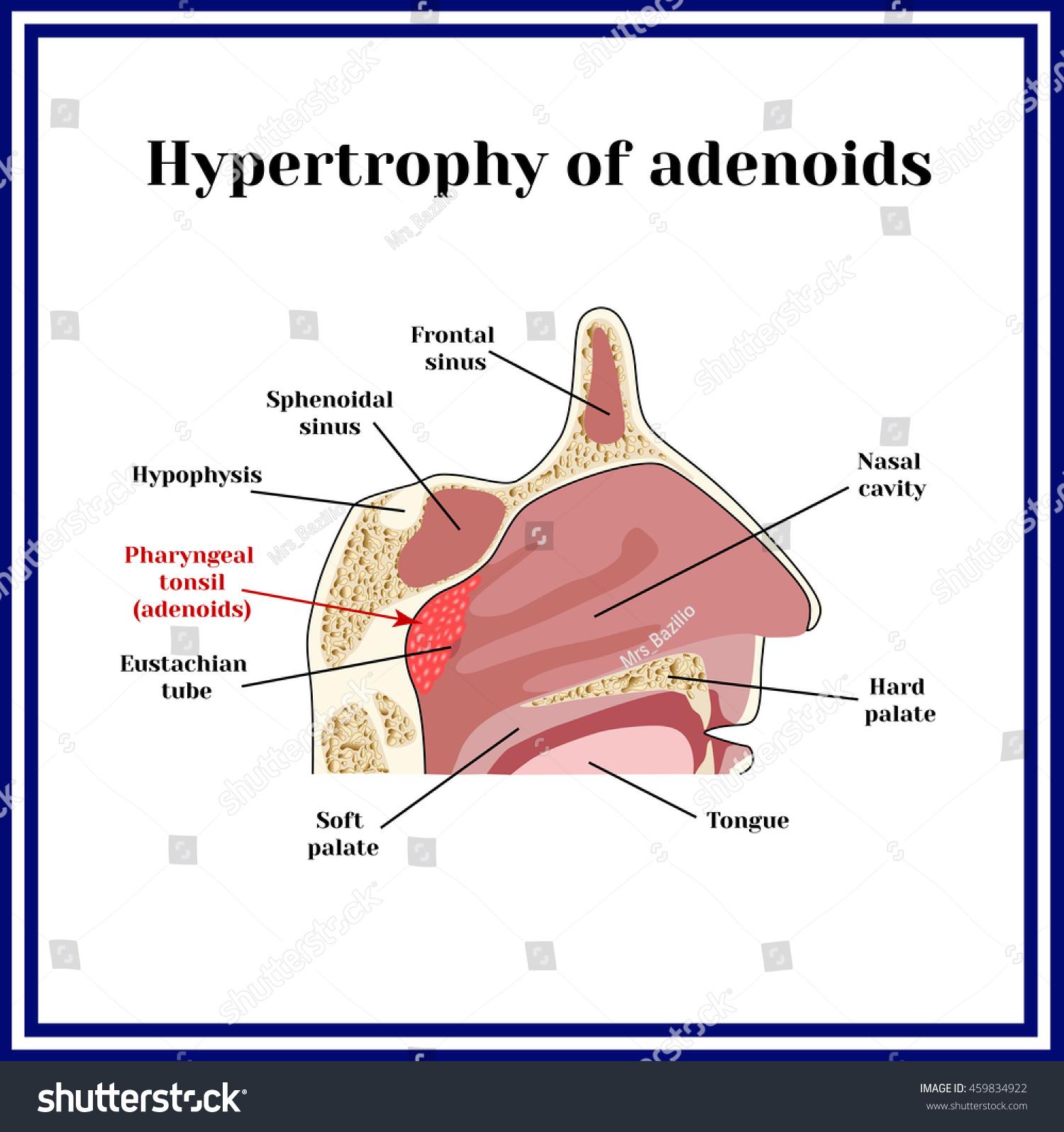 Location Adenoids Structure Nasopharynx Hypertrophy Adenoid Stock