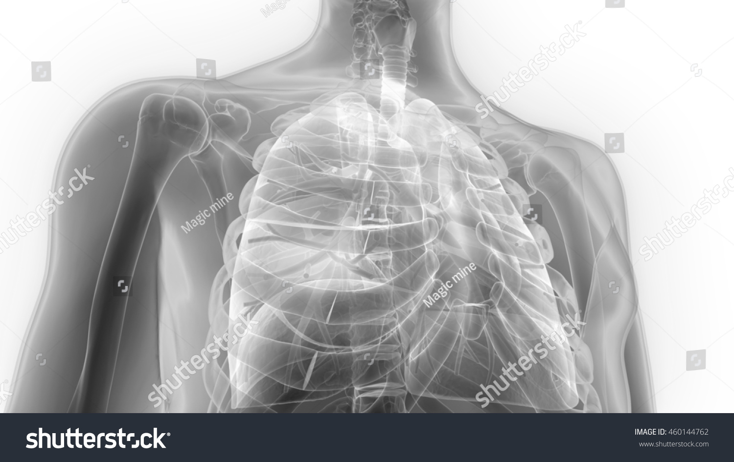 Outstanding Lateral Chest Radiograph Anatomy Vignette - Anatomy ...