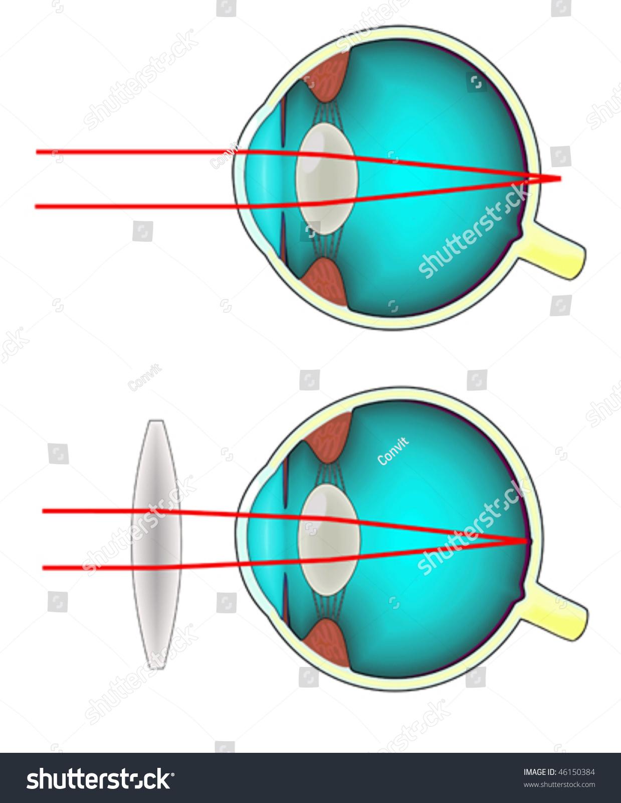 Longsighted eye diagram stock vector 46150384 shutterstock long sighted eye diagram pooptronica Gallery