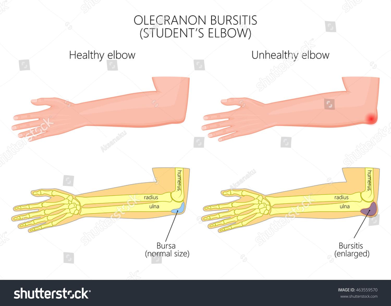 Illustration Olecranon Bursitis Students Elbow Used Stock Vector