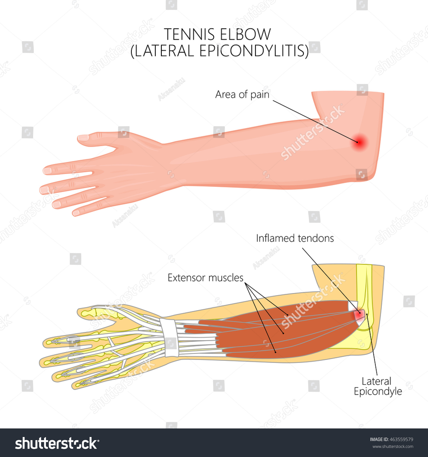 Vector Illustration Lateral Epicondylitis Tennis Elbow Stock Vector ...