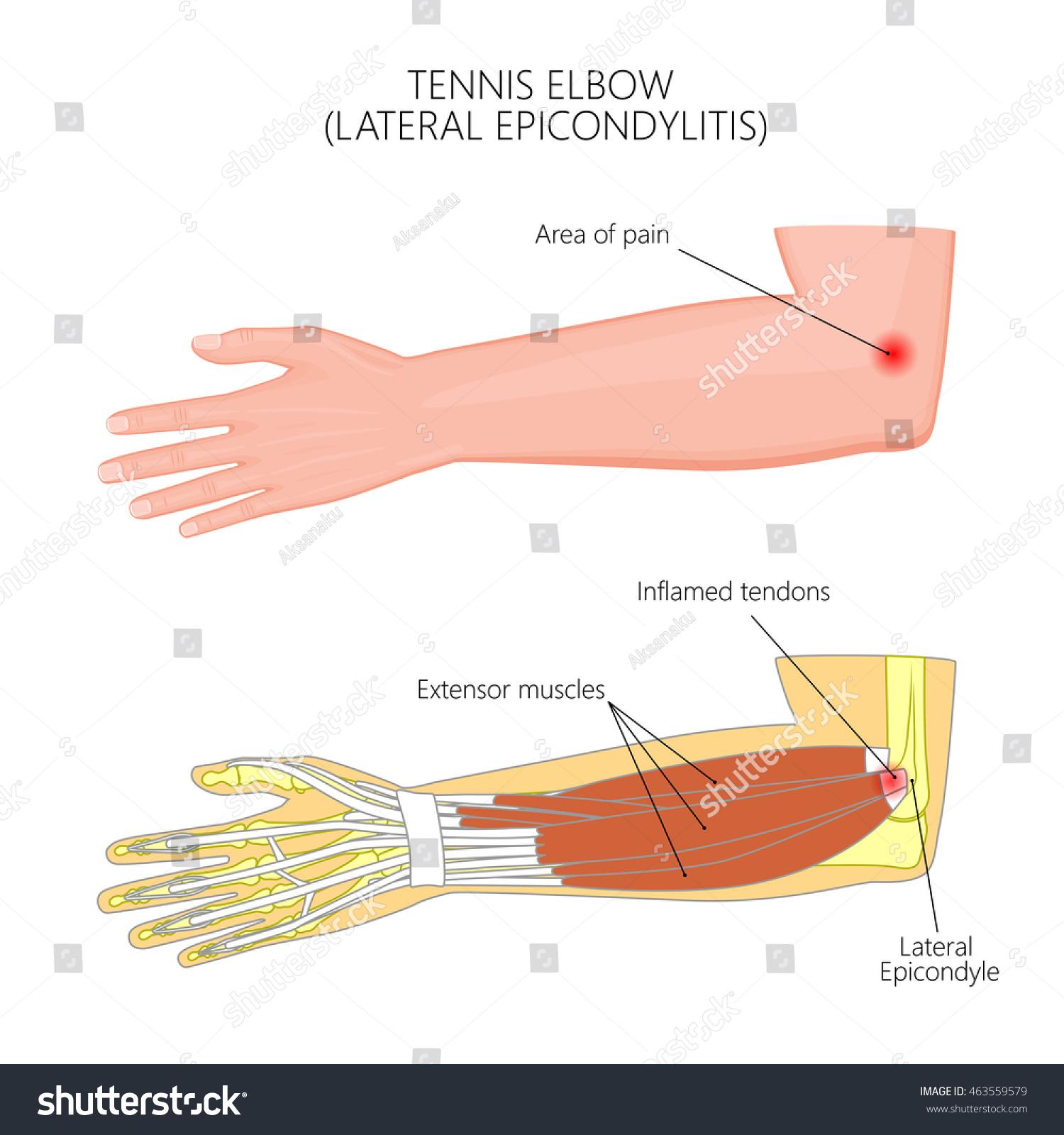 Vector Illustration Lateral Epicondylitis Tennis Elbow Stock Vector ...