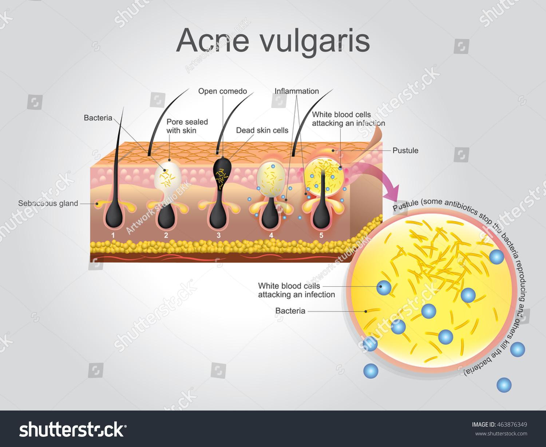 Acne Vulgaris Longterm Skin Disease That Stock Vector (Royalty Free ...