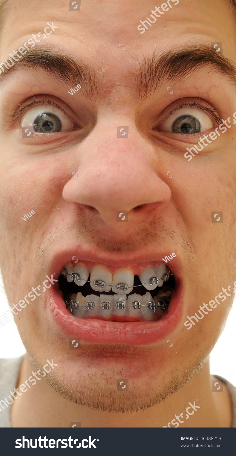 Young White Causcasian Man Shows Off His New Braces On His