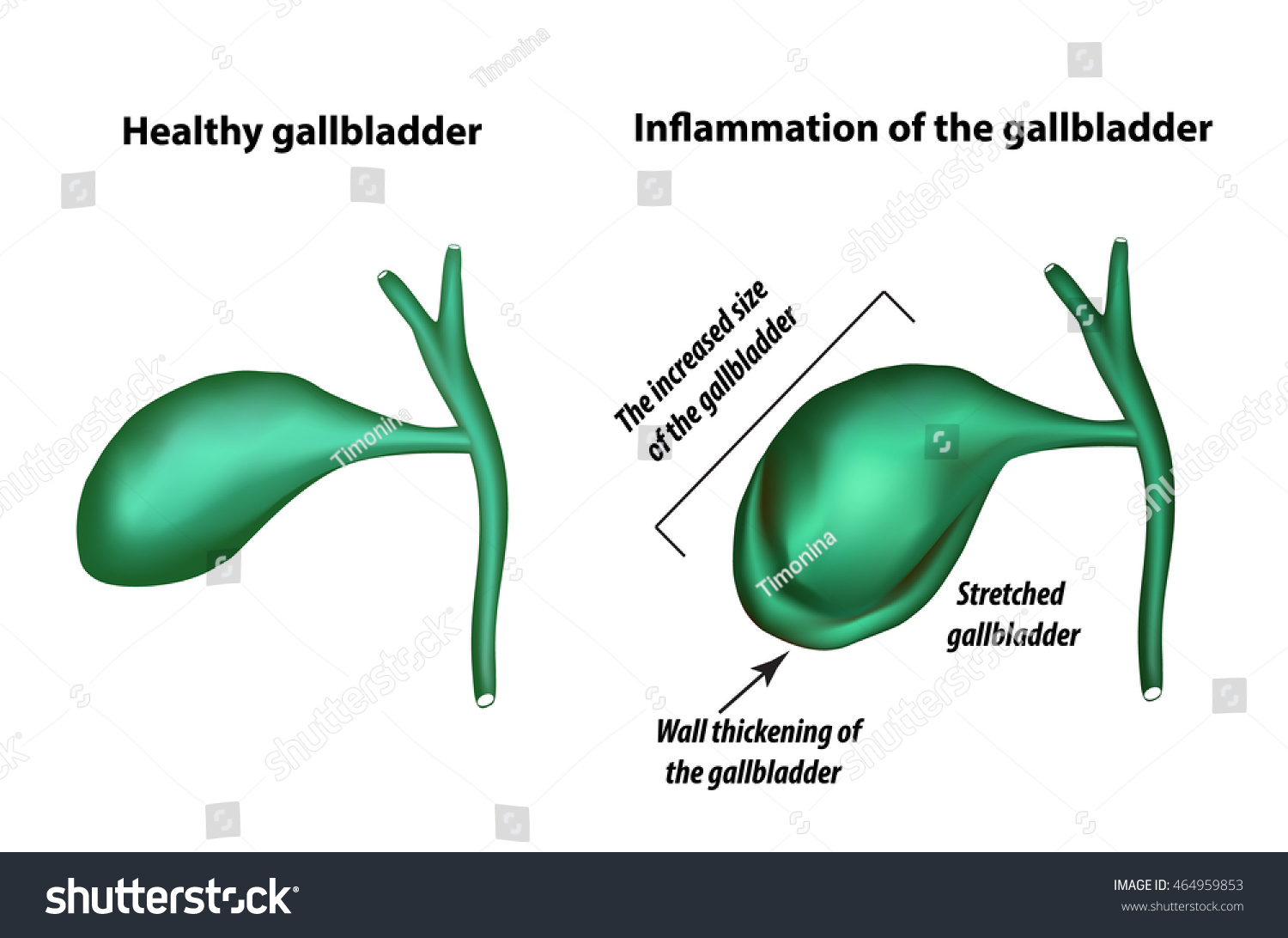 Bend of the gallbladder: causes, clinical manifestations, treatment
