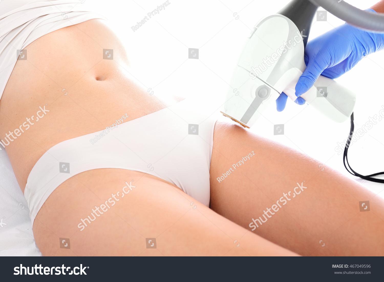 epilazione laser o area bikini epilation
